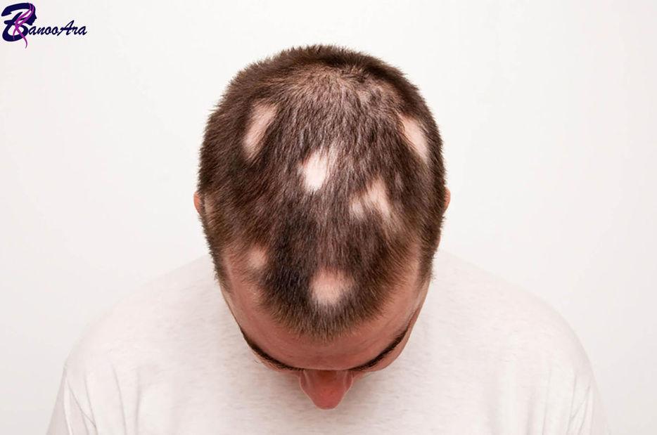ریزش موی سکه ای و روش درمان آن